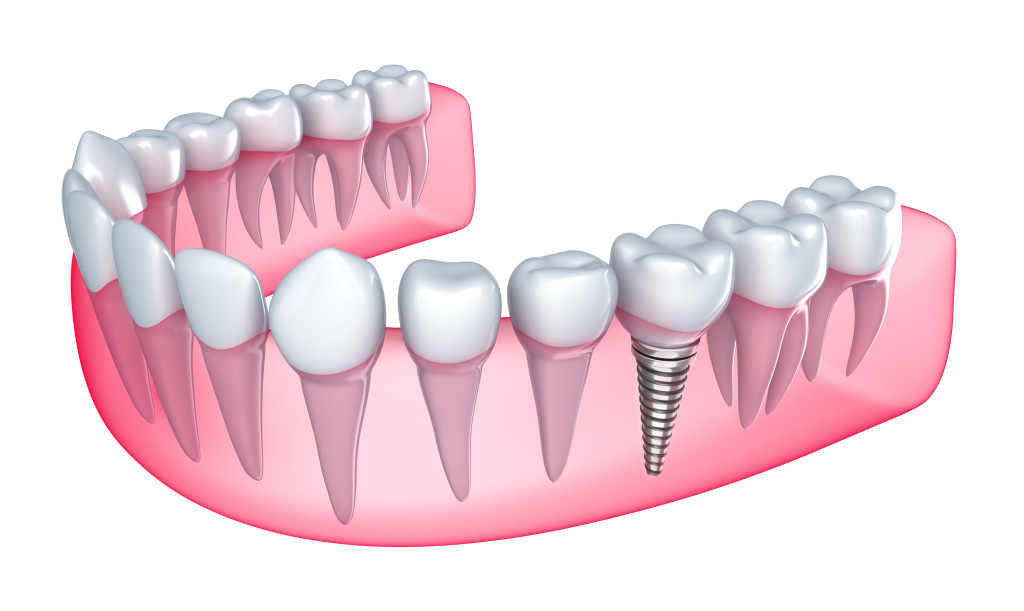 implantes-dental-branemark-lleida