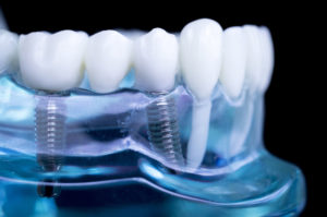 Implantes dentales inmediatos